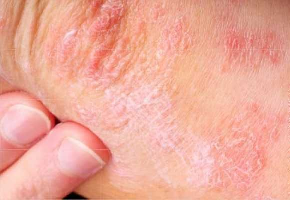 What about your Skin – Part 3 Eczema